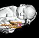 Infant Brady