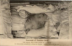 """Emilie and Elisabeth """"Conjoined Twins"""" Stoll"""