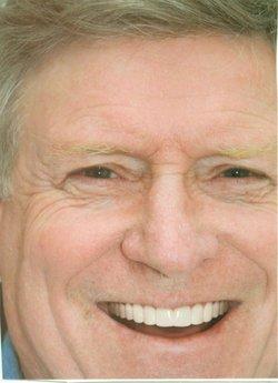 Gordon Brett Echols